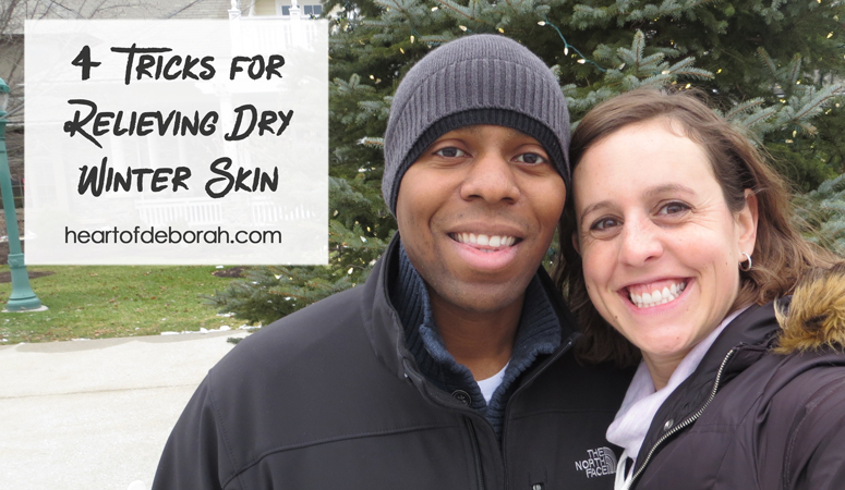 Do you suffer from dry skin? Here are 4 hacks for relieving dry skin in the winter.
